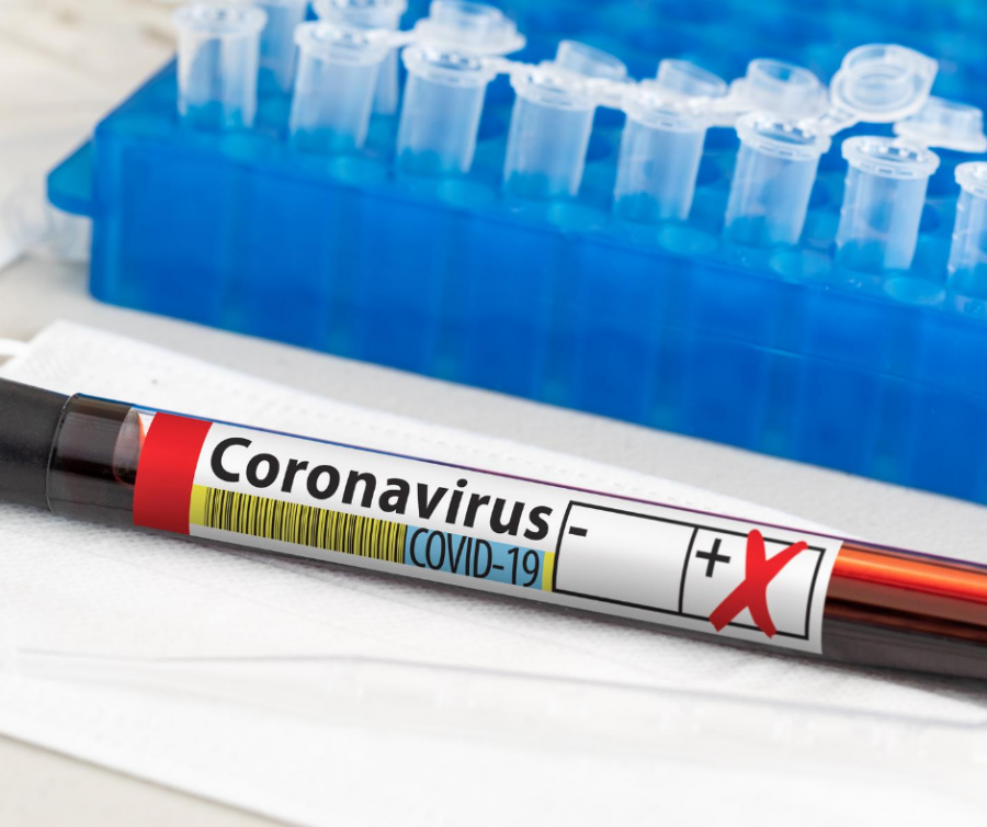 Corona, Positiv, Test, Testergebnis, Befund, Coronavirus, Virus, Testung. Das Foto zeigt ein Blutröhrchen mit der Aufschrift Coronavirus COVID-19 - canva.com